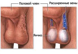 Все про операцию варикоза на ногах осложнения и реабилитация все за и против